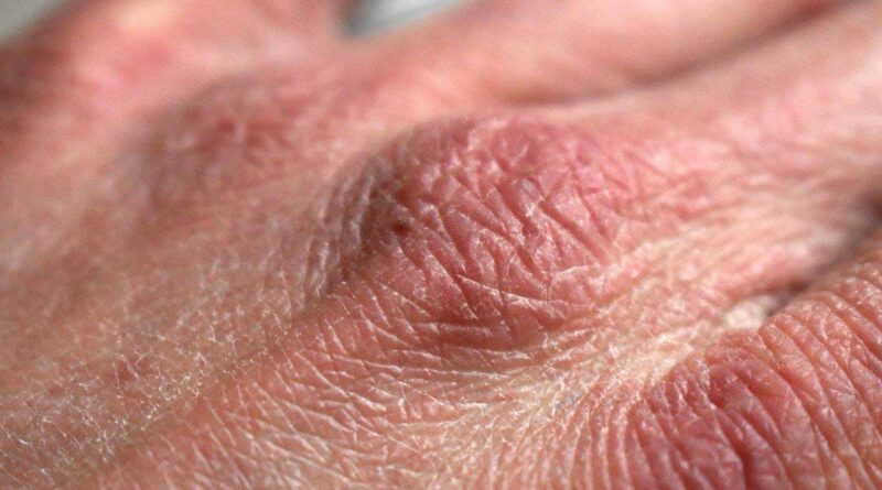 Trockene & rissige Hände